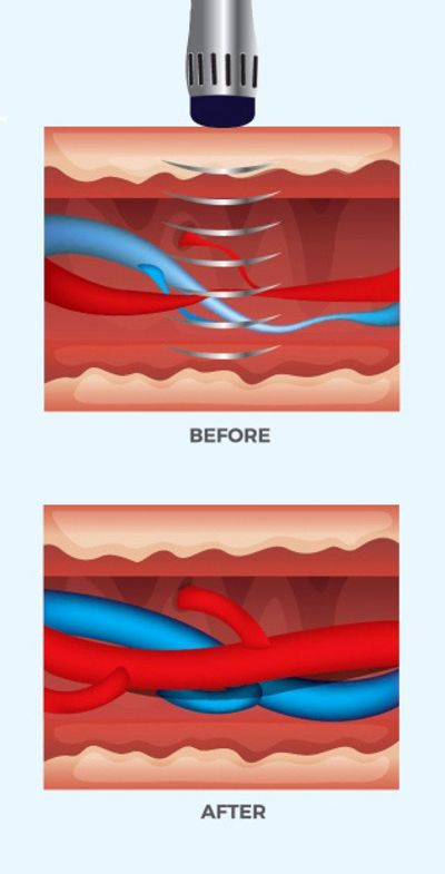 Graphic showing before and after image of blood vessels from acoustic wave therapy